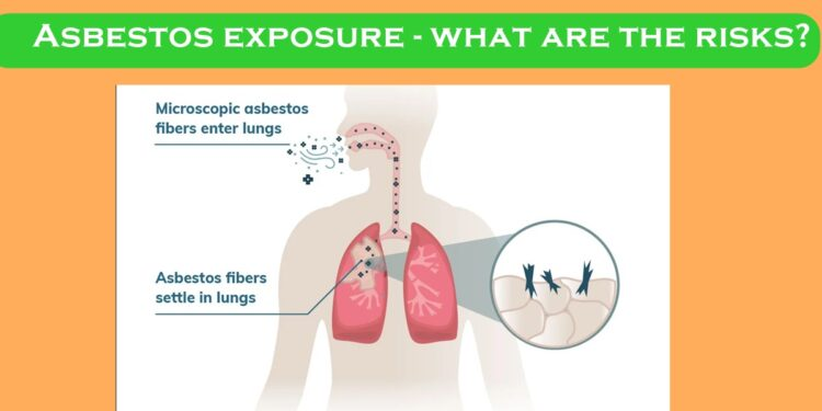 Asbestos exposure - what are the risks?
