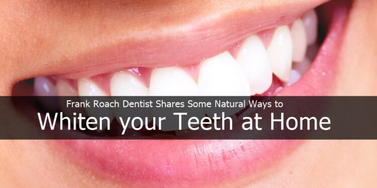 Frank Roach Dentist Shares Some Natural Ways to Whiten your Teeth at Home